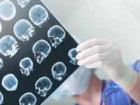 Epilepsiu majú milióny ľudí, lieči sa niekoľkými spôsobmi